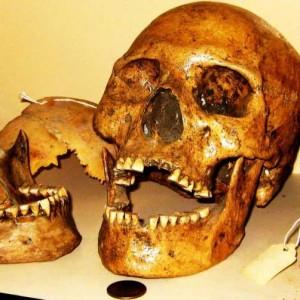 lovelock-skull-300x300